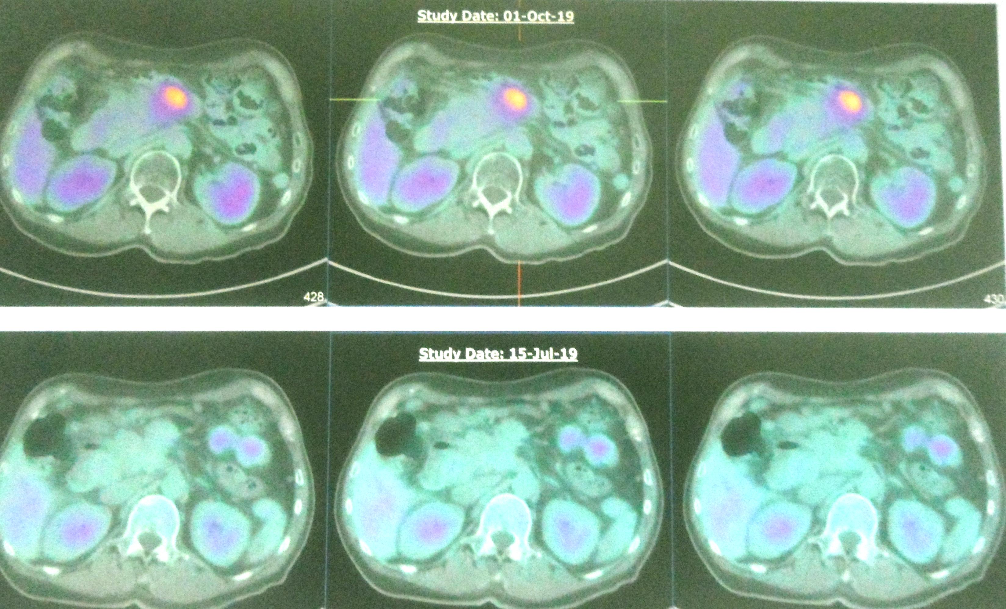 Kanker Pankreas: Bisakah Kemo Menyembuhkan Anda? atau ...